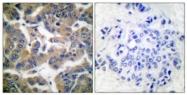 A0073-1 - Glucocorticoid receptor