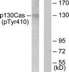 A0077-1 - BCAR1 / CRKAS
