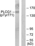 A0079-1 - PLCG1