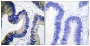 A0401-1 - EIF4EBP1 / 4E-BP1