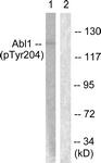 A0404-1 - ABL1