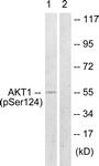 A0407-1 - AKT1 / PKB