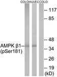 A0410-1 - AMPK beta-1 chain / AMPKb