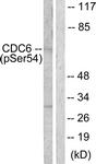 A0413-1 - CDC6