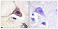 A0420-1 - Delta-type opioid receptor