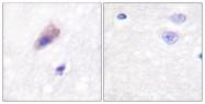 A0422-1 - Dynamin-1