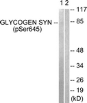 A0431-1 - Glycogen Synthase