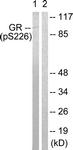 A0432-1 - Glucocorticoid receptor