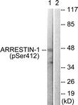 A0455-1 - Arrestin beta-1 / ARRB1