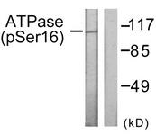 A0458-1 - ATP1A1