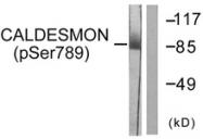 A0462-1 - Caldesmon