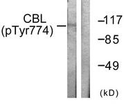 A0464-1 - CBL / RNF55