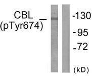 A0467-1 - CBL / RNF55