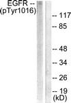 A0475-1 - EGFR / ERBB1