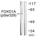 A0484-1 - FOXO1A