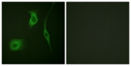 A0488-1 - Heat shock protein beta-6 / HSPB6