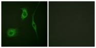 A0488-1 - Heat shock protein beta-6 / HSPB6