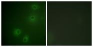 A0491-1 - CD29 / Integrin beta-1