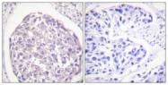 A0493-1 - CD220 / INSR