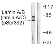 A0503-1 - Lamin-A/C (LMNA)