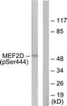 A0510-1 - MEF2D