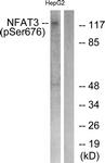 A0521-1 - NFATc4 / NFAT3