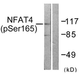 A0522-1 - NFAT4 / NFATC3