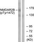 A0526-1 - NMDAR2B
