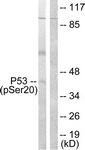 A0529-1 - TP53 / p53