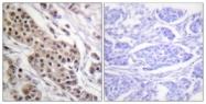 A0530-1 - TP53 / p53