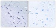 A0531-1 - RPS6KB1 / STK14A