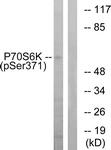 A0532-1 - RPS6KB1 / STK14A