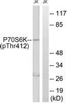 A0533-1 - RPS6KB1 / STK14A