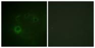 A0534-1 - RPS6KB1 / STK14A