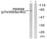 A0535-1 - RPS6KA1