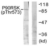 A0537-1 - RPS6KA1