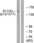 A0553-1 - PLCG2