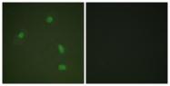 A0559-1 - Progesterone receptor