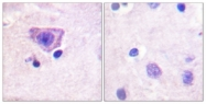A0570-1 - Ryanodine receptor 2 / RYR2