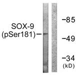 A0576-1 - SOX9