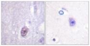 A0577-1 - SP1 / TSFP1
