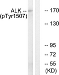 A0611-1 - CD246 / Anaplastic lymphoma kinase
