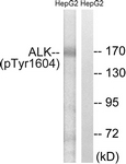 A0612-1 - CD246 / Anaplastic lymphoma kinase