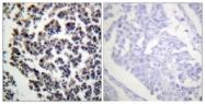 A0620-1 - B-cell linker protein / BLNK