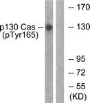 A0695-1 - BCAR1 / CRKAS