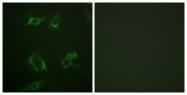A0723-1 - Phospholipase D1 / PLD1