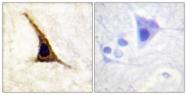 A0764-1 - Beta-2 adrenergic receptor