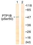 A0809-1 - PTPN1