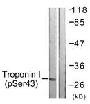 A0816-1 - Cardiac Troponin I