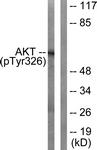 A0817-1 - AKT1 / PKB
